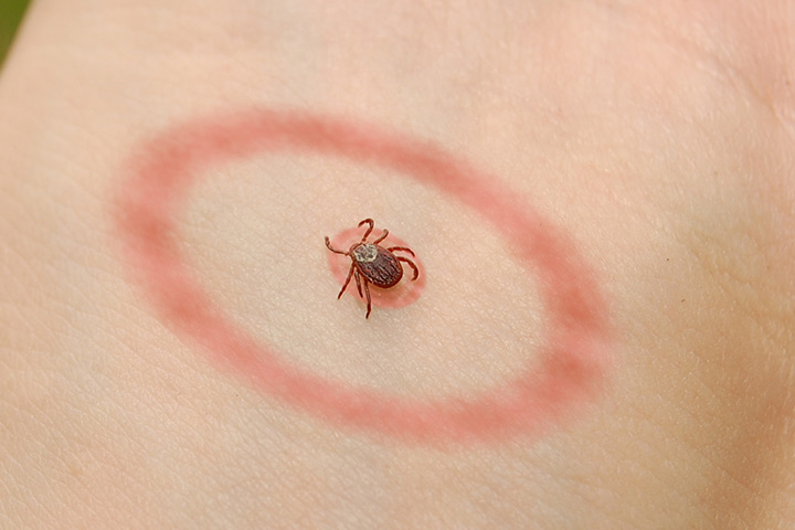 Lyme-Disease-In-Toddlers
