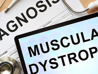 Muscular Dystrophy In Babies - 8 Symptoms And 3 Treatments You Should Be Aware Of