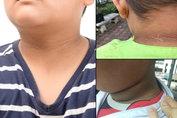 Pictures Of Acanthosis Nigricans In Children