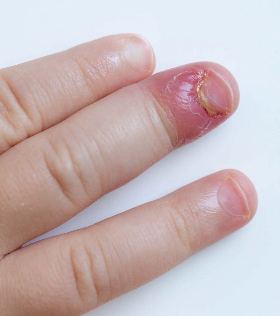8 Signs And Symptoms Of Staph Infection In Toddlers