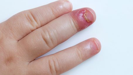 Staph Infection In Toddlers