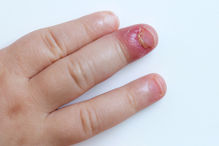 staph infection in toddlers everything you need to know