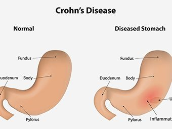 7 Unexpected Symptoms Of Crohn's Disease During Pregnancy