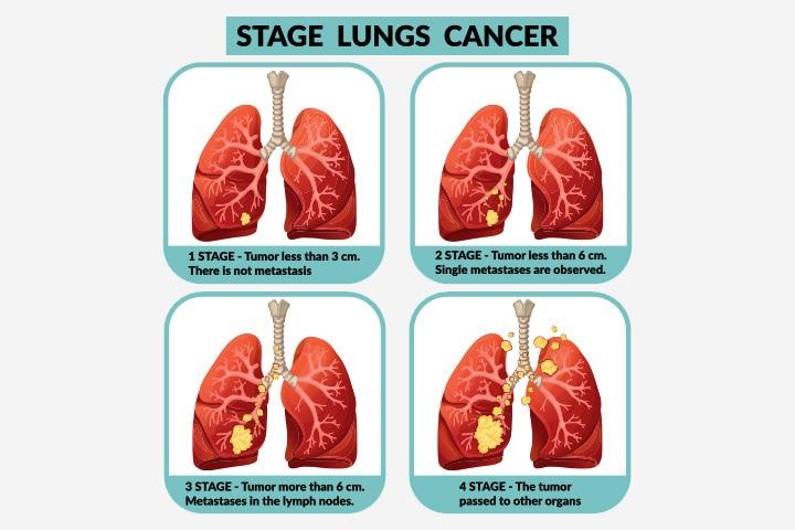 metastatic tumors