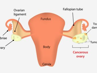 Ovarian Cancer During Pregnancy - Everything You Need To Know