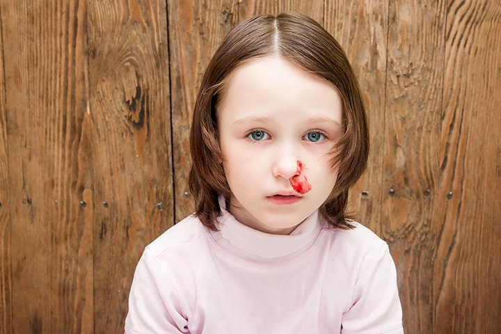 Von Willebrand Disease In Children