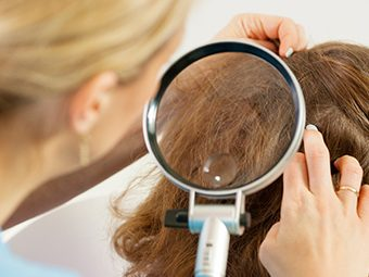 Scalp Problems In Children - Causes, Symptoms And Treatment