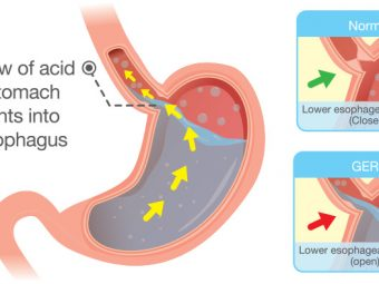 Acid Reflux In Babies: Causes, Symptoms And Treatment