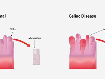 Celiac Disease During Pregnancy - Causes, Symptoms, Diagnosis & Treatments