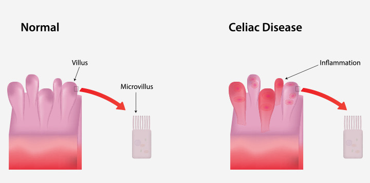 Celiac Disease And Pregnancy