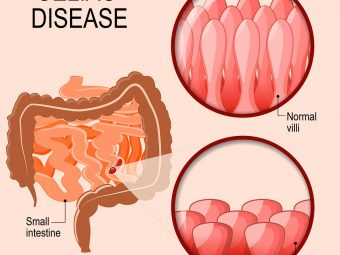 Celiac Disease In Teens: Causes, Symptoms, Treatment And Risk Factors