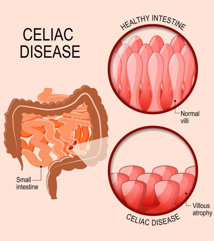 Celiac Disease In Teens