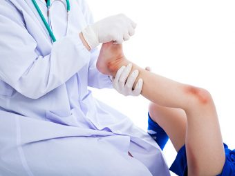 Knee Pain In Children: Causes, Symptoms, Treatment, And Home Remedies