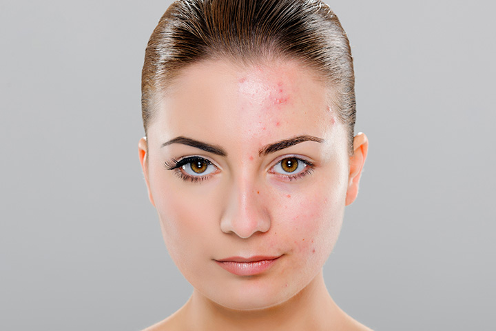 moderate acne scars