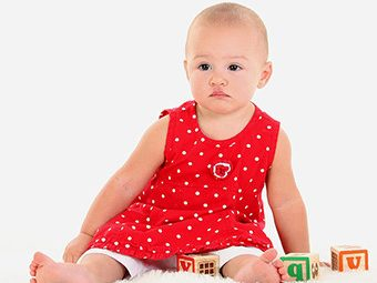 Port Wine Stains On Babies - Causes, Symptoms & Treatments