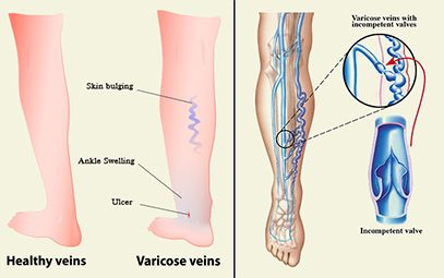 Varicose Veins After Pregnancy - 3 Causes, 8 Symptoms & 4 Treatments You Should Be Aware Of