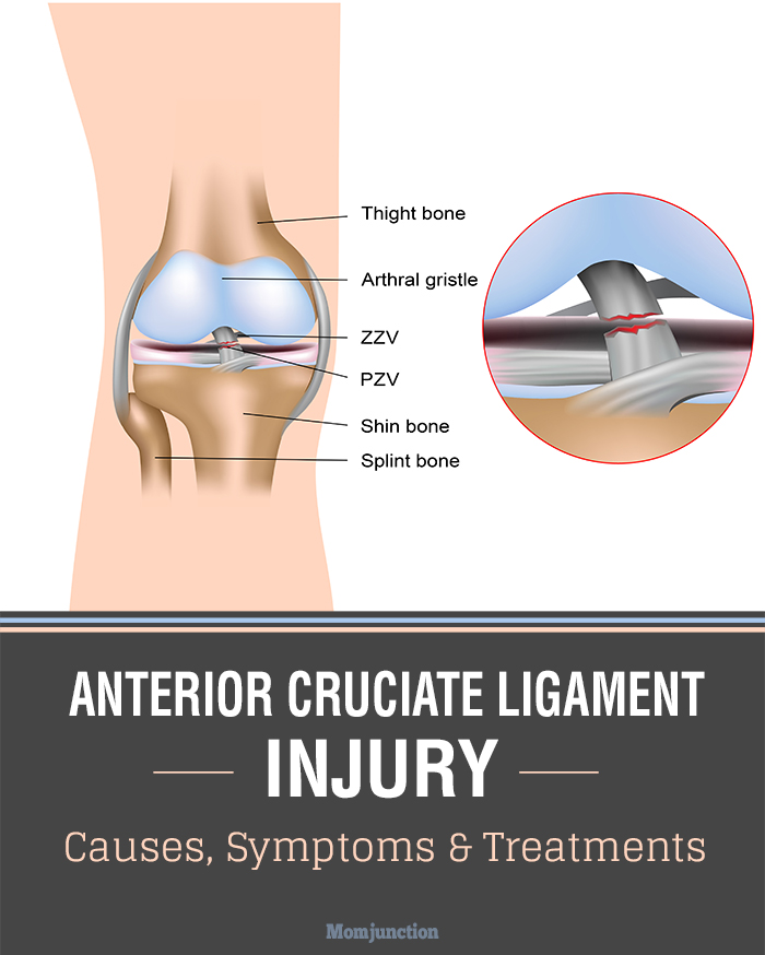 an introduction to anterior crutiate ligament injuries Learn about injuries to the anterior cruciate ligament (acl), which is one of four knee ligaments that connect the upper leg bone (femur) with the lower leg bone (tibia.