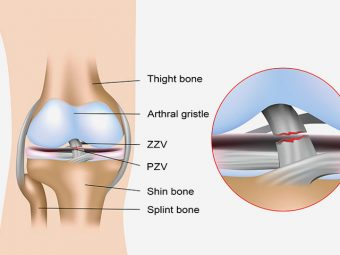 Anterior Cruciate Ligament Injury - Causes, Symptoms & Treatments