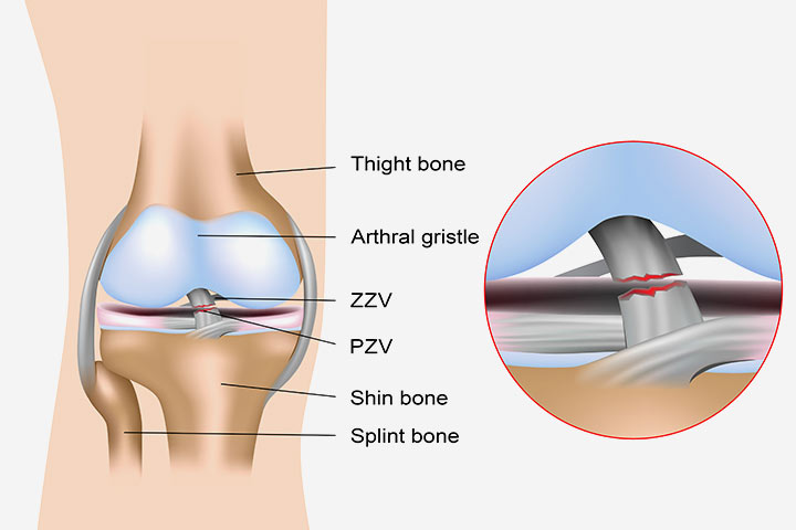 Anterior Cruciate Ligament Injury