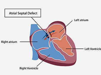 Atrial Septal Defect In Children - Symptoms And Treatment
