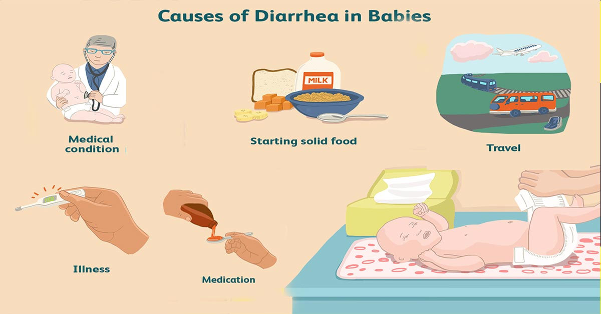 Diarrhea In Babies – Causes, Symptoms And Treatment