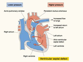 Ventricular Septal Defect In Children - All You Need To Know
