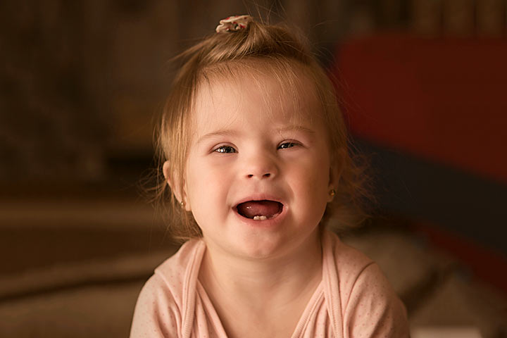 Baby Down Syndrome