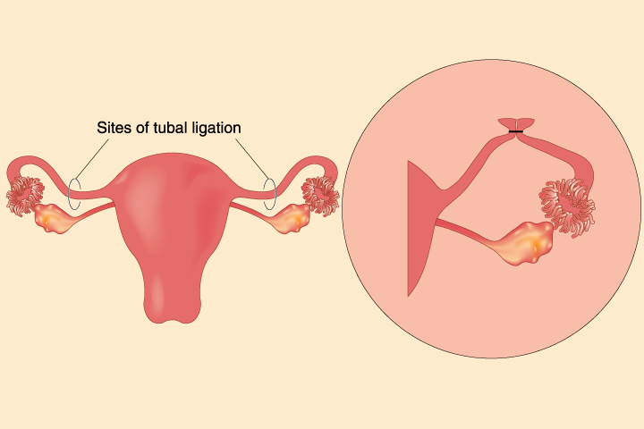 Chances Of  Pregnancy After Tubal Ligation