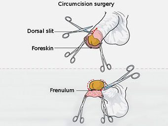 Circumcision In Children - Everything You Should Be Aware Of