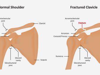 Broken Collarbone In Children - Causes, Symptoms & Treatment