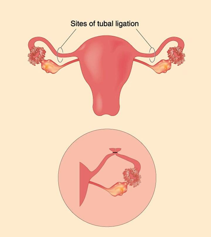 Chances Of Pregnancy After Tubal Ligation
