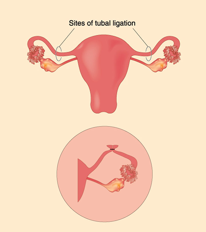 Ways to get pregnant naturally after tubal ligation