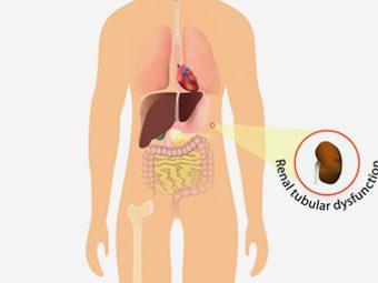 Renal Tubular Acidosis In Children - Symptoms & Treatment