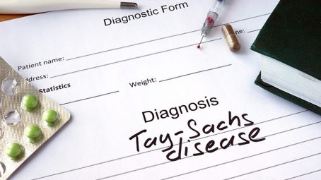 Tay-Sachs Disease In Children