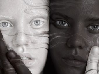 Twin Teens: One Black, One White, And A Legendary Story