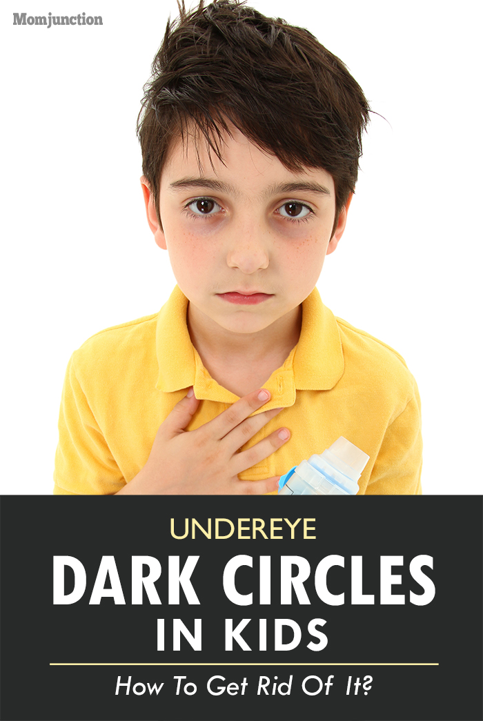 How To Get Rid Of Dark Circles Under Eyes In Children?