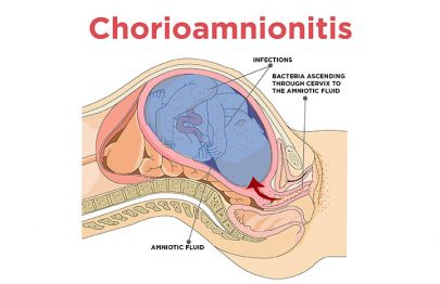 Chorioamnionitis: What Is It And How Is It Treated