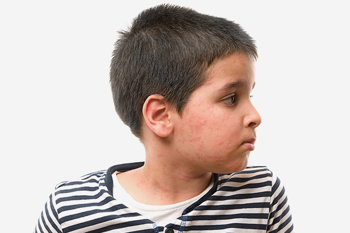 Skin Rashes In Children