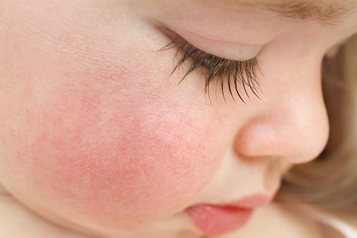 Slapped cheek disease
