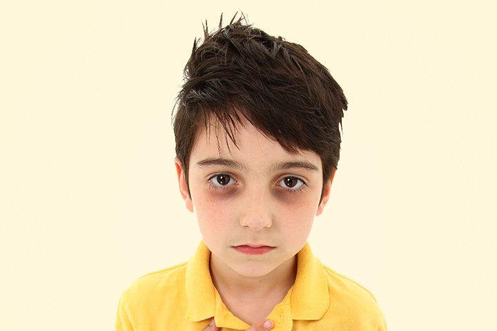 Sark Circles Under Eyes Children Images