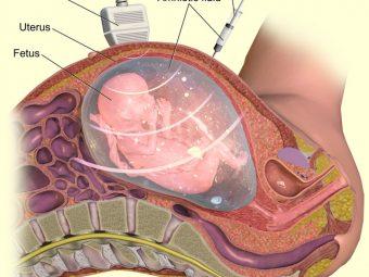 Amniocentesis Test: Procedure, Risks & Results