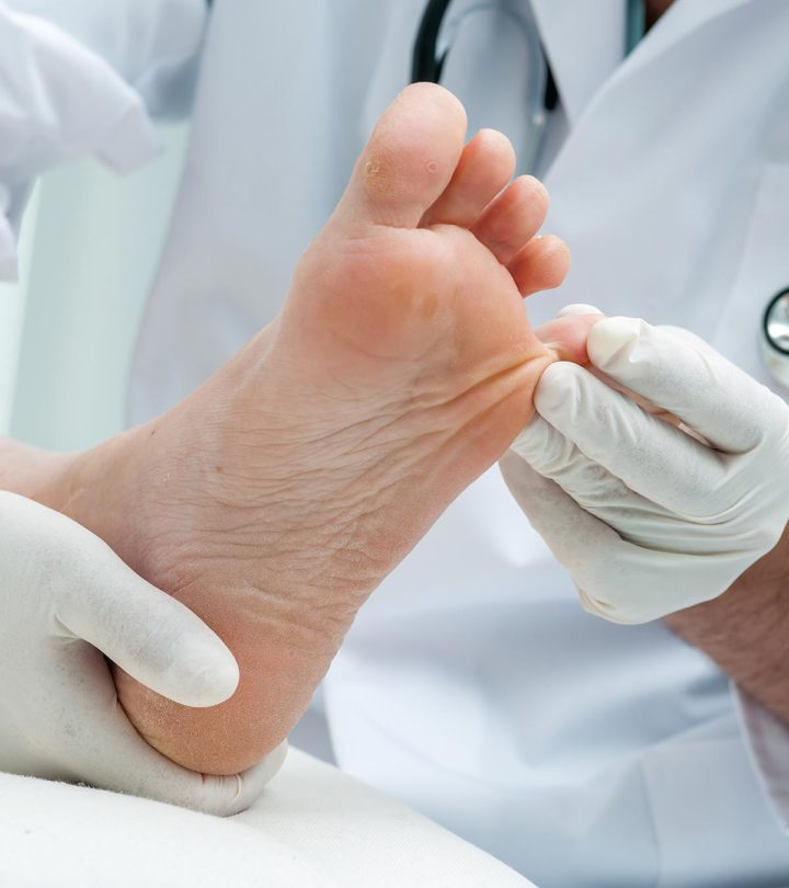 Athlete's Foot During Pregnancy