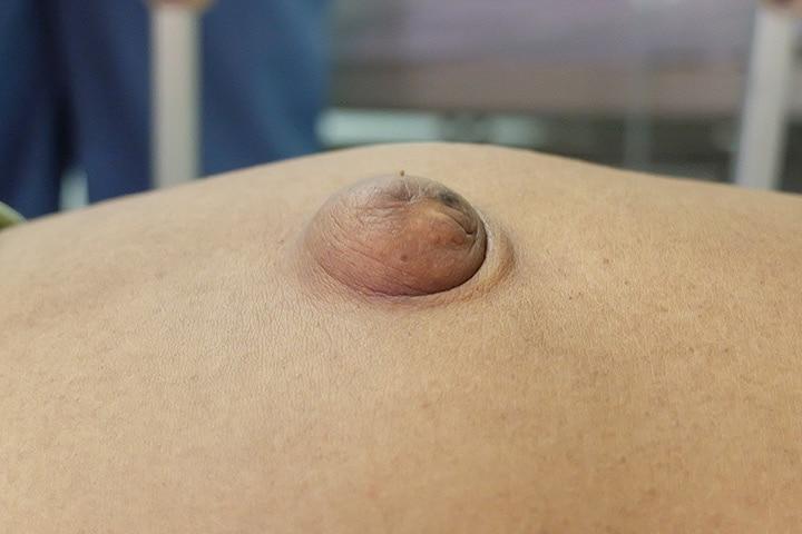 Postpartum Umbilical Hernia Causes, Symptoms And Treatment1