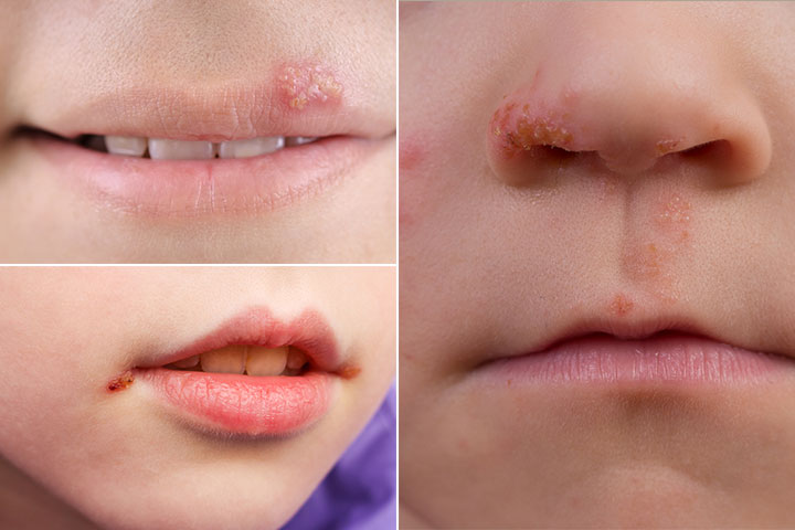 What Does A Cold Sore Look Like