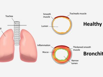 Bronchitis In Children: Causes, Symptoms And Remedies