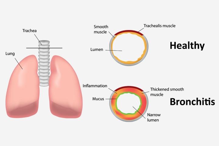Bronhitis pri otrocih vzroki, simptomi in zdravila-2882