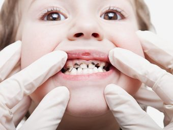 Cavities In Children - Causes, Symptoms, Remedies & Solutions