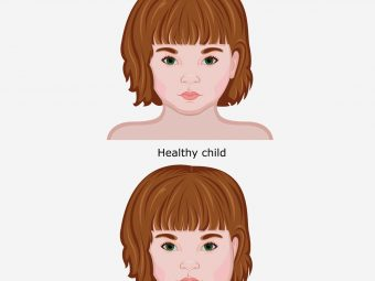 Mumps In Children: Causes, Symptoms And Home Care
