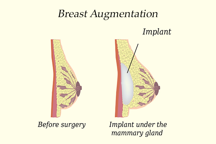 Teen Breast Augmentation