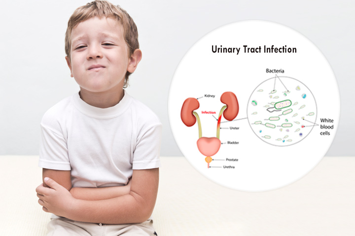 Urinary tract infection toddlers